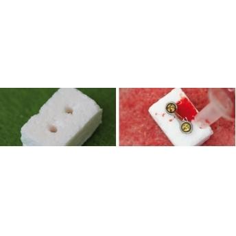 NanoBone®| blok kostny ZESTAW